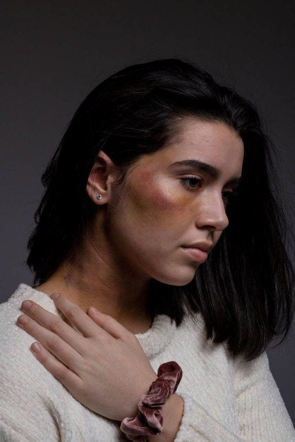 Soraya Bussatti is pictured here with bruises on her cheek and neck, designed with makeup to replicate what could be the result of domestic violence.