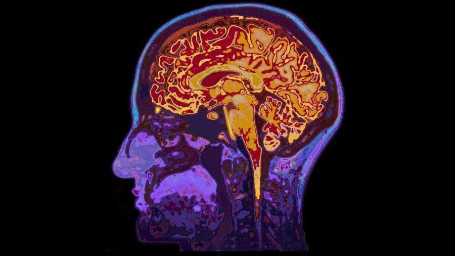 Decoding brain injury